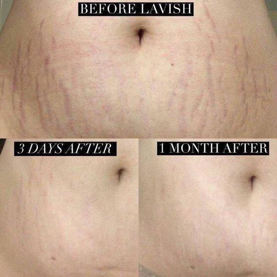Lavish body butter: stretch marks, aging thin skin, sunburns, and much more